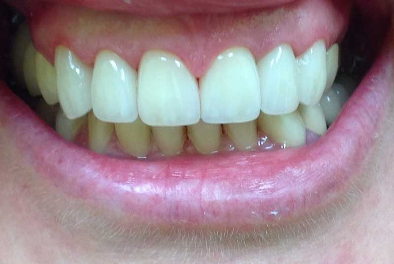 Our Buford Ga Dental Services Include Implants Veneers Bonding